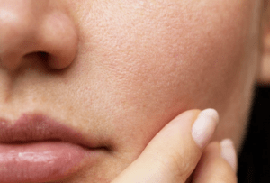 open pores remedies