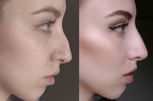 fillers for the nose