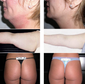 mesotherapy for fat reduction products